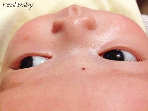 赤ちゃんの頭がペコペコする!これって病気?