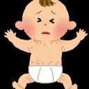 突発性発疹の特徴と対処