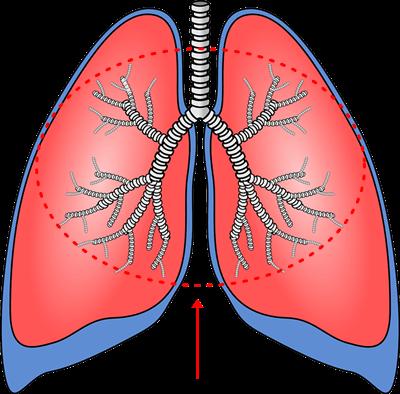 気管支炎の特徴と対処