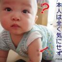 赤ちゃんのBCG接種痕が腫れる!化膿する!ときの見極めポイント