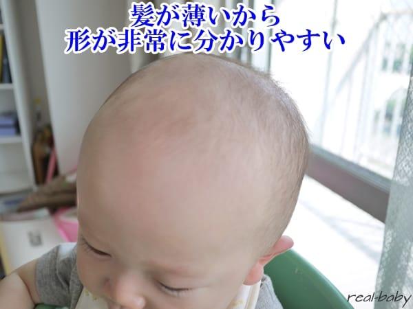 赤ちゃんの頭の形はいつまでにどんなことをすると治せるの?