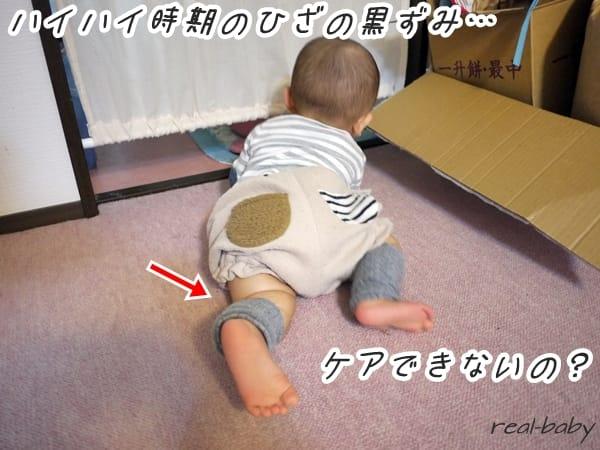 ハイハイ赤ちゃんの膝に黒ずみが!ケア方法&これって対処が必要なの?