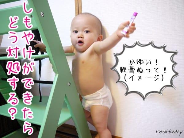 赤ちゃんのしもやけ注意報!しもやけ予防法とできてしまった時の対策まとめ